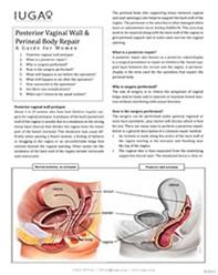 Posterior Vaginal Repair